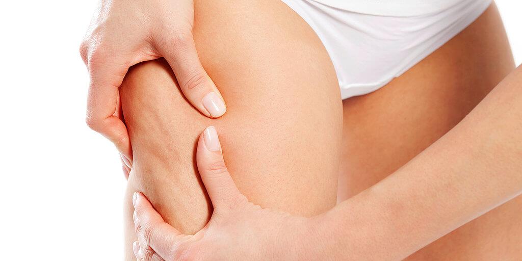 Perché le tue cosce si riempiono di cellulite? Cause e rimedi.